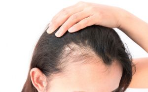 wigs to help with hair loss at elements hair salon in surrey